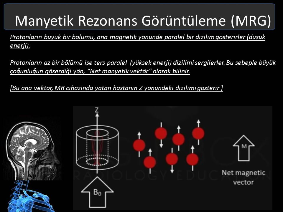 Manyetik Rezonans Görüntüleme (MRG) Protonlar bu ana manyetik alan etrafında (Z ekseni) etrafında spin dönüşü yaparlar.