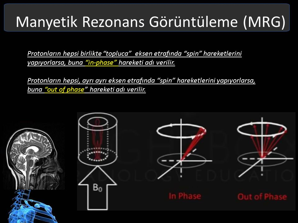 Manyetik Rezonans Görüntüleme (MRG) RF Reception; Net manyetik vektör'ün ürettiği elektriksel sinyal RF coil sarmalları tarafından alınmaktadır.