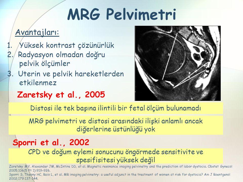 MRG Pelvimetri Zaretsky MV, Alexander JM, McIntire DD, et al. Magnetic resonance imaging pelvimetry and the prediction of labor dystocia. Obstet Gynec