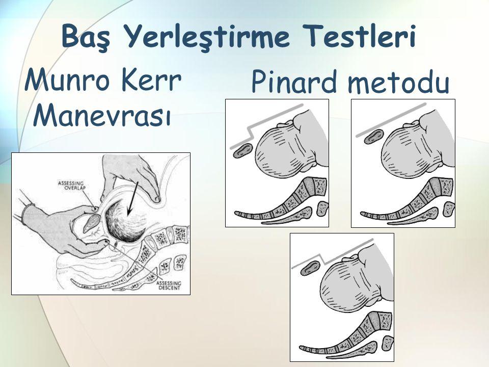 Munro Kerr Manevrası Baş Yerleştirme Testleri Pinard metodu