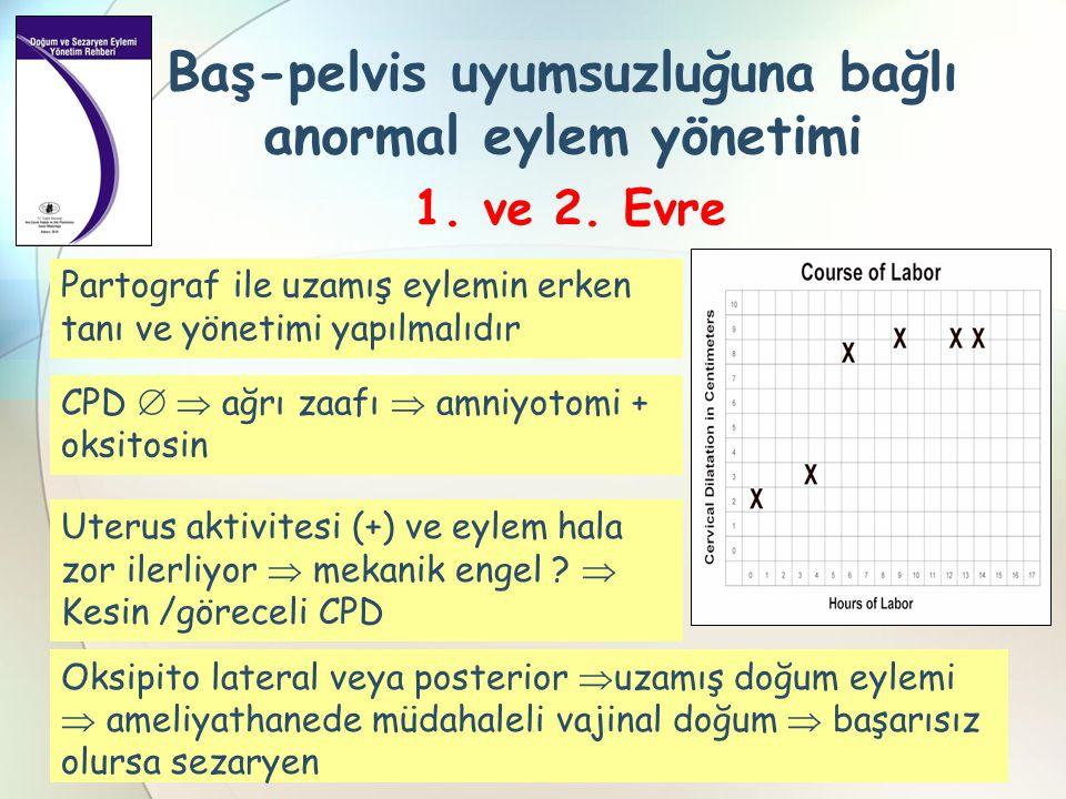 Baş-pelvis uyumsuzluğuna bağlı anormal eylem yönetimi 1. ve 2. Evre CPD   ağrı zaafı  amniyotomi + oksitosin Partograf ile uzamış eylemin erken tan