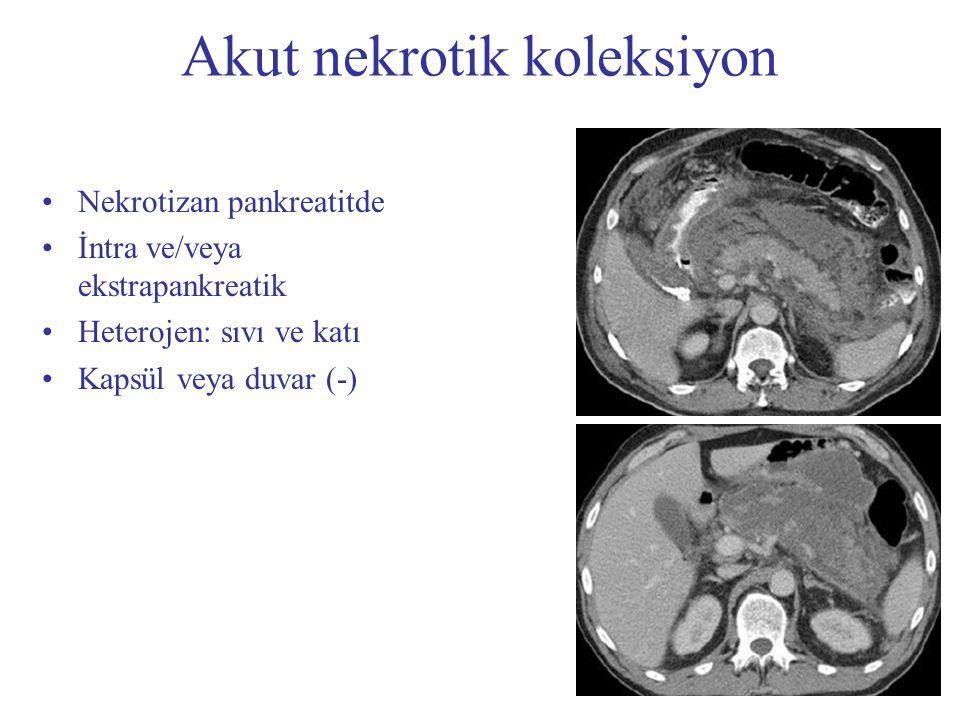 Psödokist İnterstisyal pankreatitde Pankreas komşuluğunda Homojen sıvı Peripankreatik fasyalar tarafından sınırlanır Düzgün sınırlı Kapsül (+) Akut pankreatitde nadirdir!