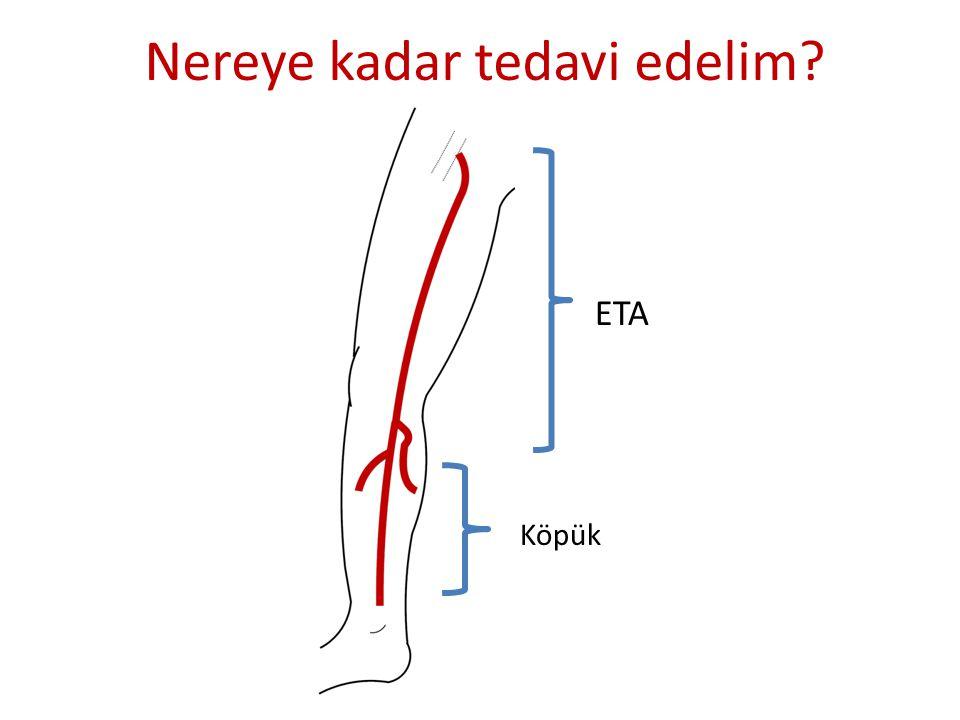 ETA Köpük
