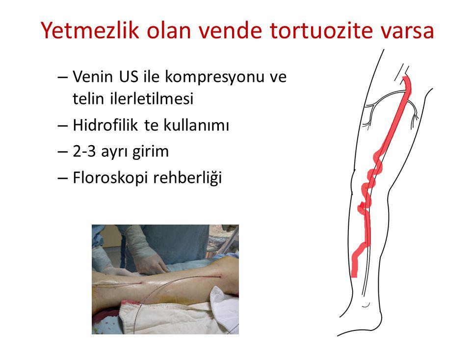 – Venin US ile kompresyonu ve telin ilerletilmesi – Hidrofilik te kullanımı – 2-3 ayrı girim – Floroskopi rehberliği