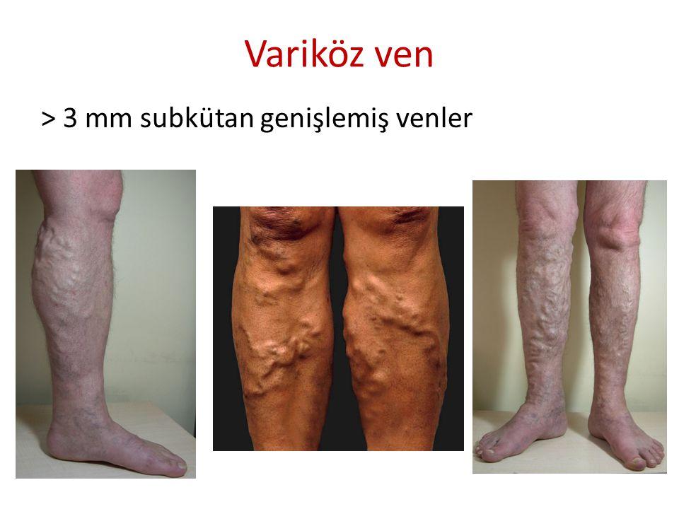 Klinik bulgular Yakınma – Ağrı, ayakta yanma/sıcaklık hissi, kramp, ayak yorgunluğu, ağırlık hissi, kaşıntı, uyuşma, – Şişlik (bulgu) – Huzursuz bacak sendromu Bulgu – Ven genişlemeleri Variköz ven (>3 mm) Retiküler ven (1-2 mm) Telenjektazi (< 1mm) – Deri ve deri altı dokusu bulguları Şişlik Deri değişiklikleri Ülser