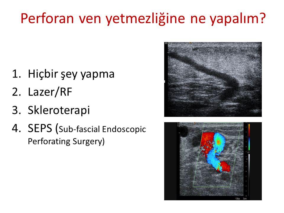 Perforan ven yetmezliğine ne yapalım? 1.Hiçbir şey yapma 2.Lazer/RF 3.Skleroterapi 4.SEPS ( Sub-fascial Endoscopic Perforating Surgery)