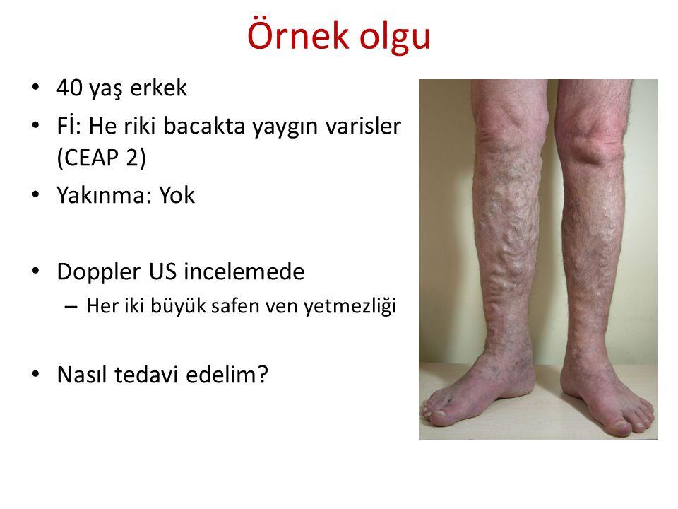 Örnek olgu 40 yaş erkek Fİ: He riki bacakta yaygın varisler (CEAP 2) Yakınma: Yok Doppler US incelemede – Her iki büyük safen ven yetmezliği Nasıl ted
