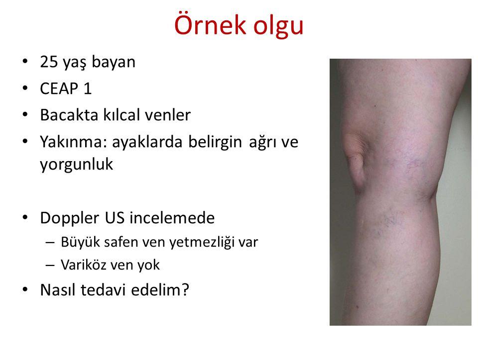 Örnek olgu 25 yaş bayan CEAP 1 Bacakta kılcal venler Yakınma: ayaklarda belirgin ağrı ve yorgunluk Doppler US incelemede – Büyük safen ven yetmezliği