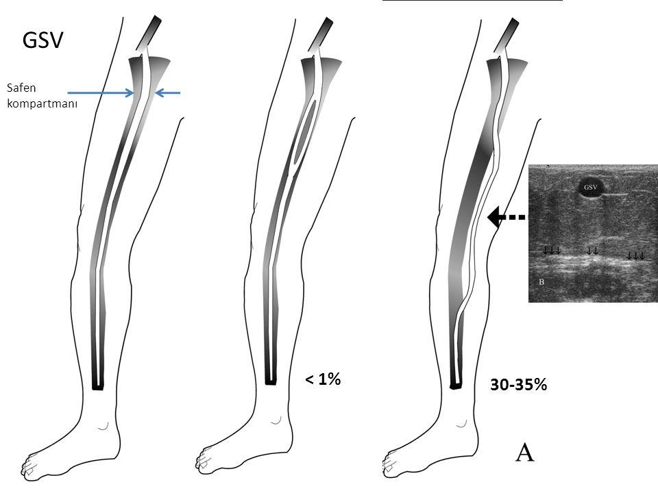 Tedavide derin ven trombozu riski EVLA ya da RF Skleroterapi Öneriler: Skleroyu ilk dönem çok az yapmalı İlk dönem kural: çok iğne girimiyle az sklero yapmak Alıştıkça doz ve etkinlik artırılabilir Doz üst sınırı yok Ancak özellikle ilk dönemde 5-10 ampülle sınırlayın Köpük ile DVT riski daha fazla çünkü daha etkili DVT geliştiğini anladığın an antikoagülasyon başlamalı Popliteal vene uzanan DVT varsa endovasküler tedavi etkili olabilir Tedavi sonrası hastalara ayakta beklenmedik şişlik olursa hemen gelin diye belirtin