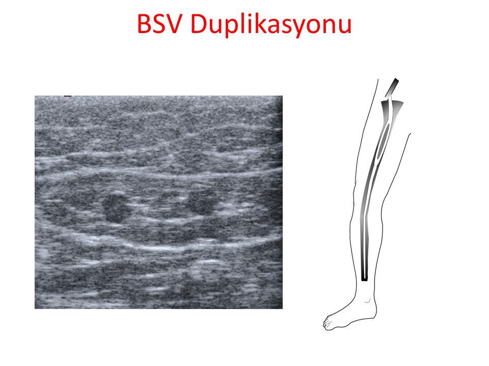 BSV Duplikasyonu