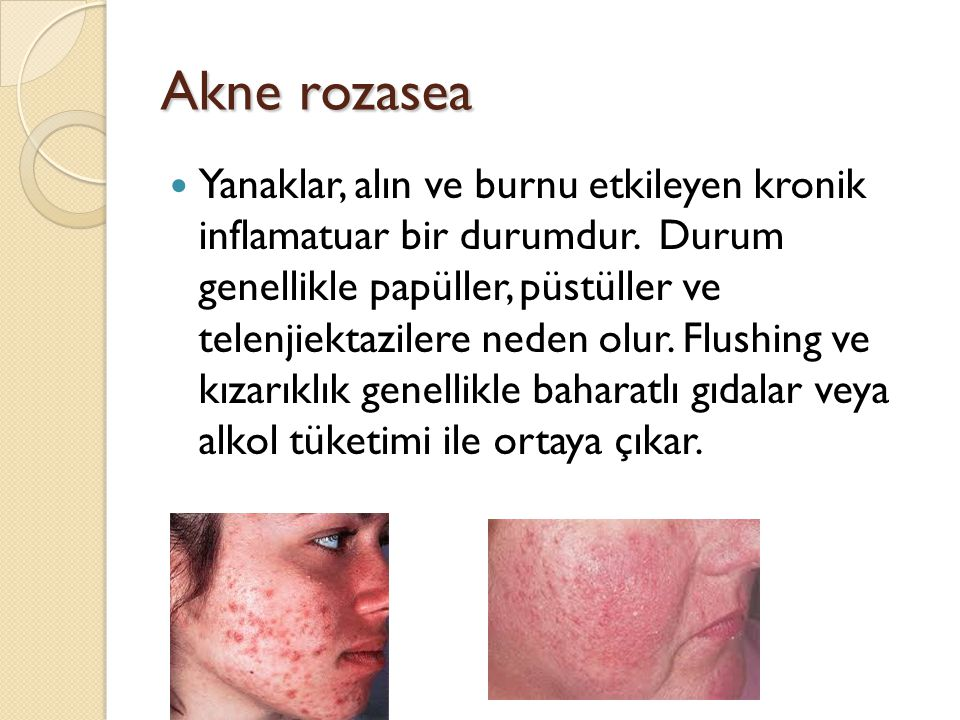 Akne rozasea Yanaklar, alın ve burnu etkileyen kronik inflamatuar bir durumdur. Durum genellikle papüller, püstüller ve telenjiektazilere neden olur.