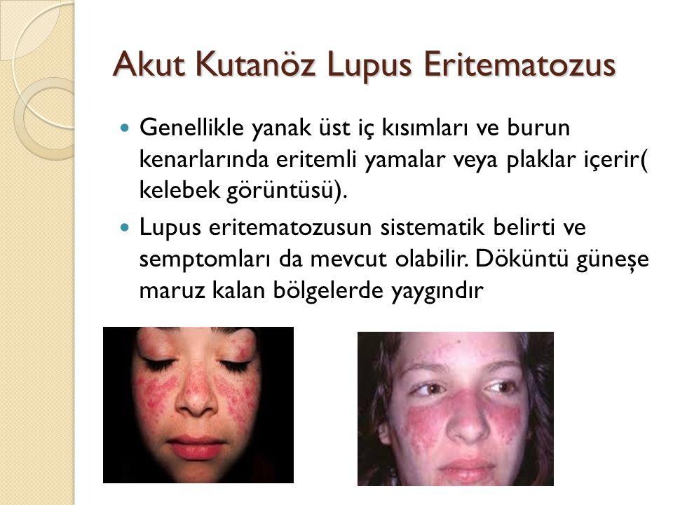Akut Kutanöz Lupus Eritematozus Genellikle yanak üst iç kısımları ve burun kenarlarında eritemli yamalar veya plaklar içerir( kelebek görüntüsü). Lupu
