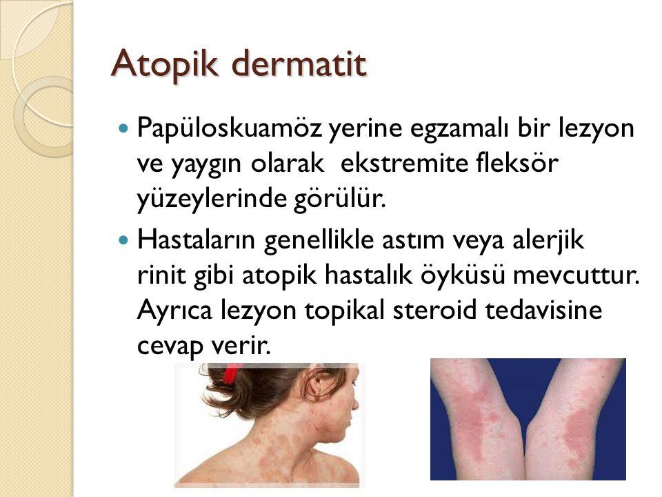 Atopik dermatit Papüloskuamöz yerine egzamalı bir lezyon ve yaygın olarak ekstremite fleksör yüzeylerinde görülür. Hastaların genellikle astım veya al