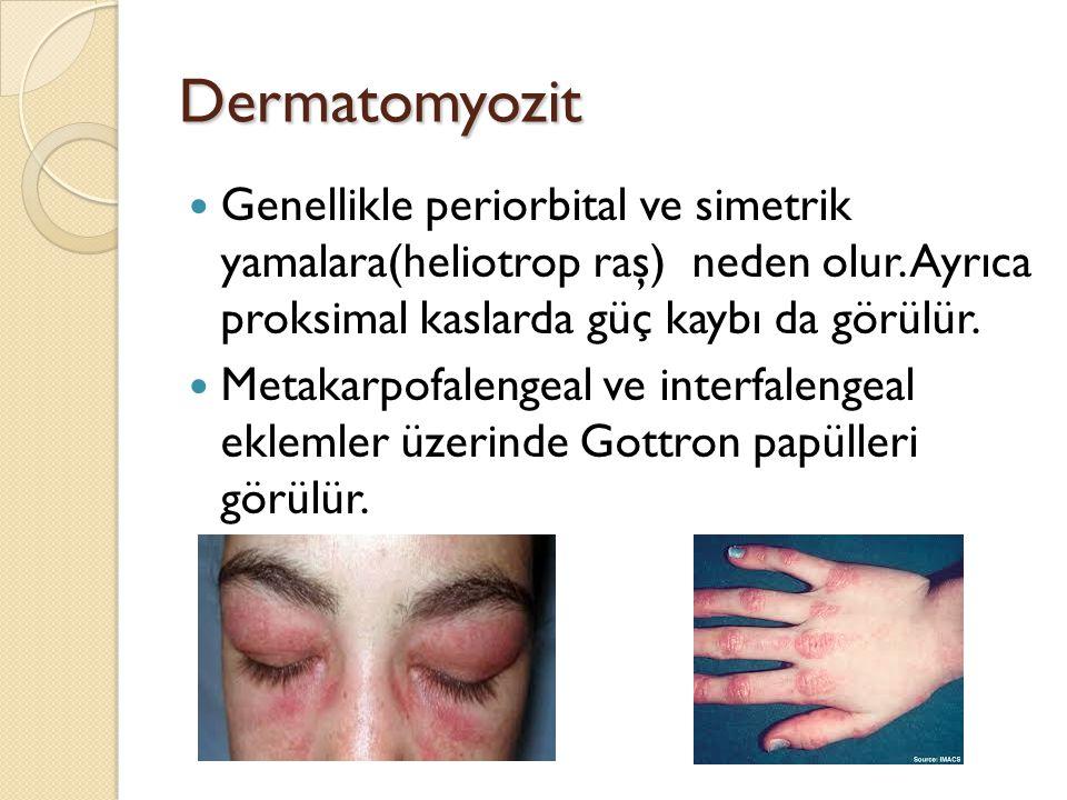 Dermatomyozit Genellikle periorbital ve simetrik yamalara(heliotrop raş) neden olur. Ayrıca proksimal kaslarda güç kaybı da görülür. Metakarpofalengea