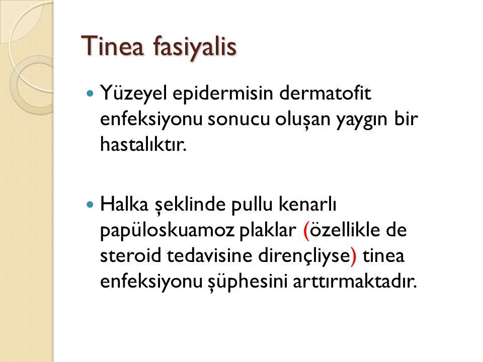 Tinea fasiyalis Yüzeyel epidermisin dermatofit enfeksiyonu sonucu oluşan yaygın bir hastalıktır. Halka şeklinde pullu kenarlı papüloskuamoz plaklar (ö