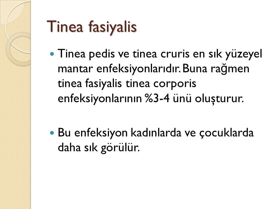 Tinea fasiyalis Tinea pedis ve tinea cruris en sık yüzeyel mantar enfeksiyonlarıdır. Buna ra ğ men tinea fasiyalis tinea corporis enfeksiyonlarının %3