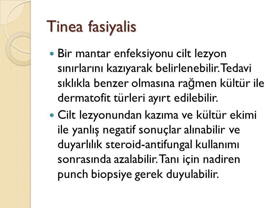 Tinea fasiyalis Bir mantar enfeksiyonu cilt lezyon sınırlarını kazıyarak belirlenebilir. Tedavi sıklıkla benzer olmasına ra ğ men kültür ile dermatofi