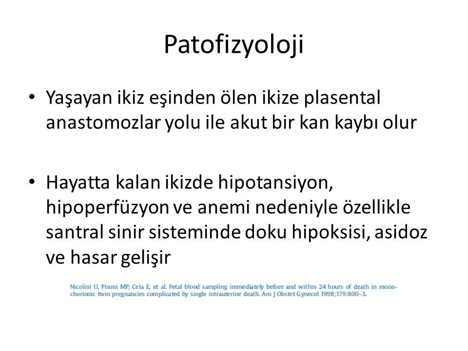Patofizyoloji Yaşayan ikiz eşinden ölen ikize plasental anastomozlar yolu ile akut bir kan kaybı olur Hayatta kalan ikizde hipotansiyon, hipoperfüzyon