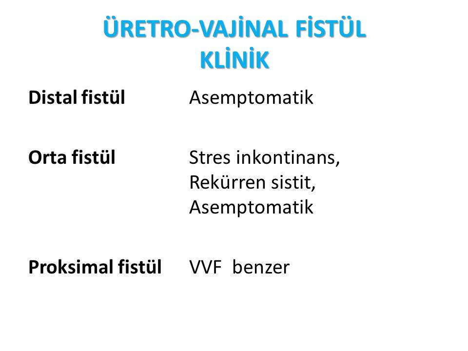 ÜRETRO-VAJİNAL FİSTÜL KLİNİK Distal fistül Asemptomatik Orta fistül Stres inkontinans, Rekürren sistit, Asemptomatik Proksimal fistülVVF benzer