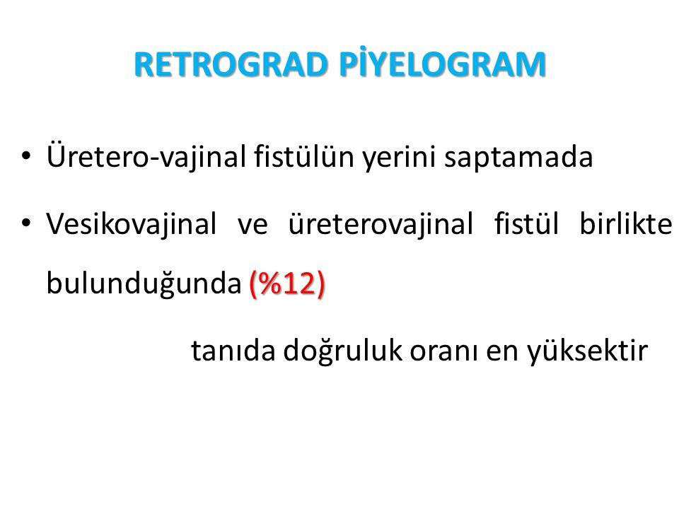 RETROGRAD PİYELOGRAM Üretero-vajinal fistülün yerini saptamada (%12) Vesikovajinal ve üreterovajinal fistül birlikte bulunduğunda (%12) tanıda doğrulu