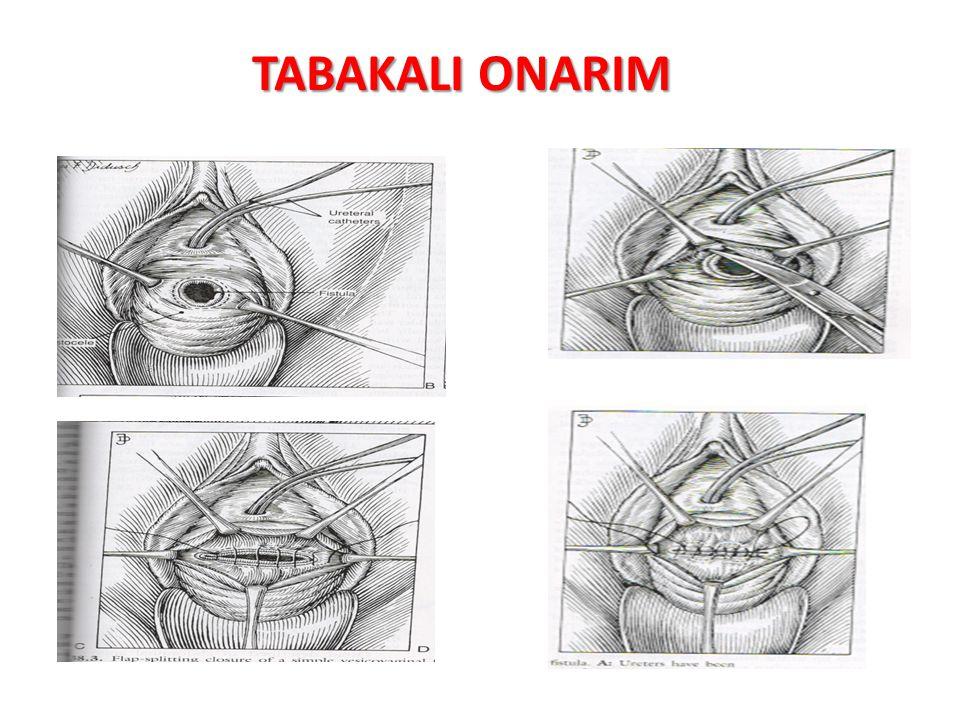 TABAKALI ONARIM