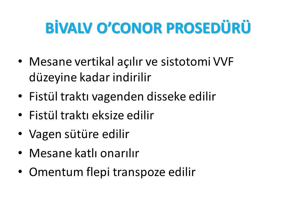 BİVALV O'CONOR PROSEDÜRÜ Mesane vertikal açılır ve sistotomi VVF düzeyine kadar indirilir Fistül traktı vagenden disseke edilir Fistül traktı eksize e