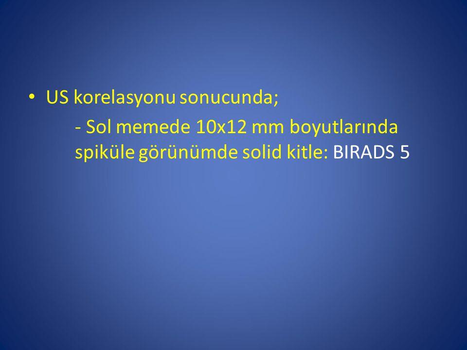 US korelasyonu sonucunda; - Sol memede 10x12 mm boyutlarında spiküle görünümde solid kitle: BIRADS 5