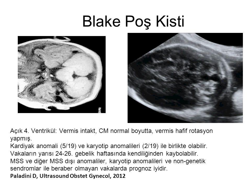 Blake Poş Kisti Açık 4. Ventrikül: Vermis intakt, CM normal boyutta, vermis hafif rotasyon yapmış. Kardiyak anomali (5/19) ve karyotip anomalileri (2/