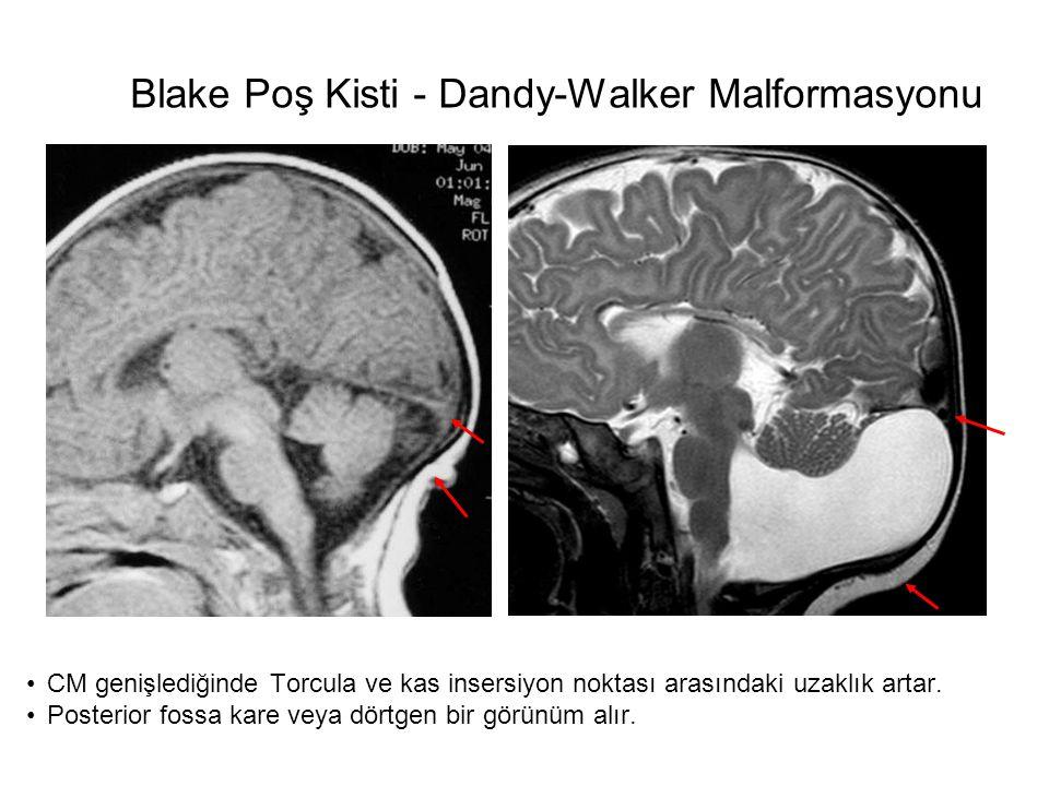 Blake Poş Kisti - Dandy-Walker Malformasyonu Cisti tasca di BlakeDandy-Walker CM genişlediğinde Torcula ve kas insersiyon noktası arasındaki uzaklık a