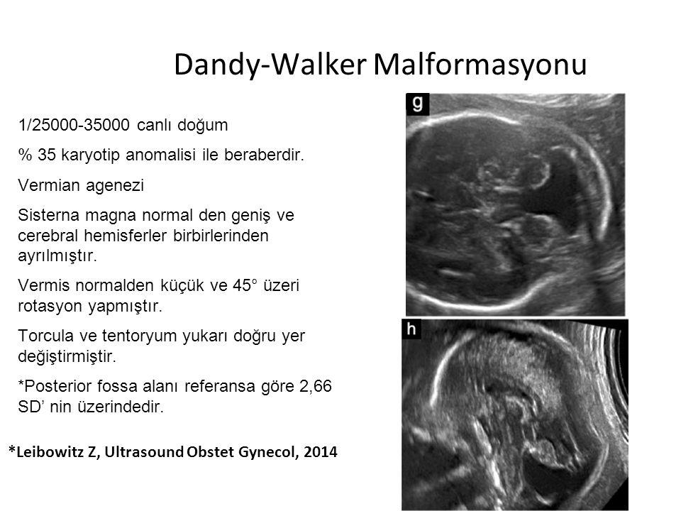 Dandy-Walker Malformasyonu 1/25000-35000 canlı doğum % 35 karyotip anomalisi ile beraberdir. Vermian agenezi Sisterna magna normal den geniş ve cerebr
