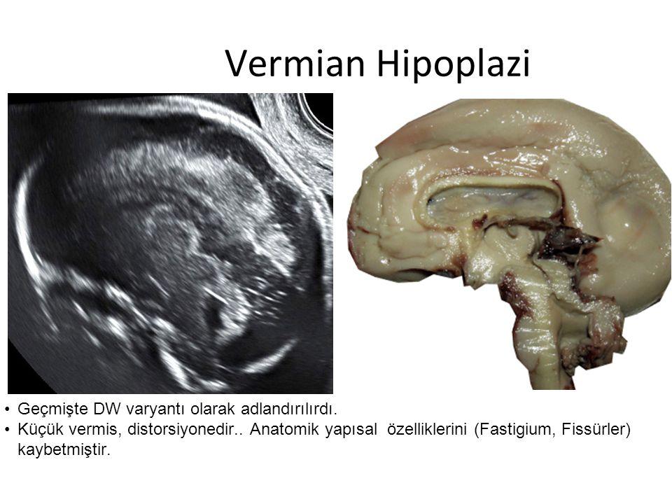 Vermian Hipoplazi Geçmişte DW varyantı olarak adlandırılırdı. Küçük vermis, distorsiyonedir.. Anatomik yapısal özelliklerini (Fastigium, Fissürler) ka