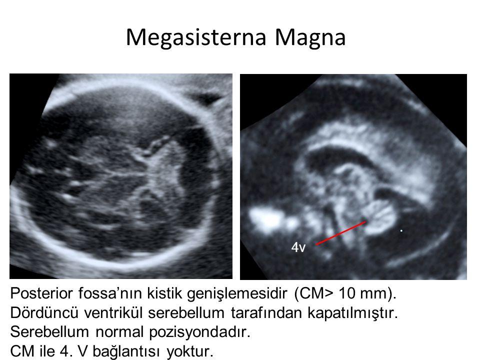 Megasisterna Magna Posterior fossa'nın kistik genişlemesidir (CM> 10 mm). Dördüncü ventrikül serebellum tarafından kapatılmıştır. Serebellum normal po