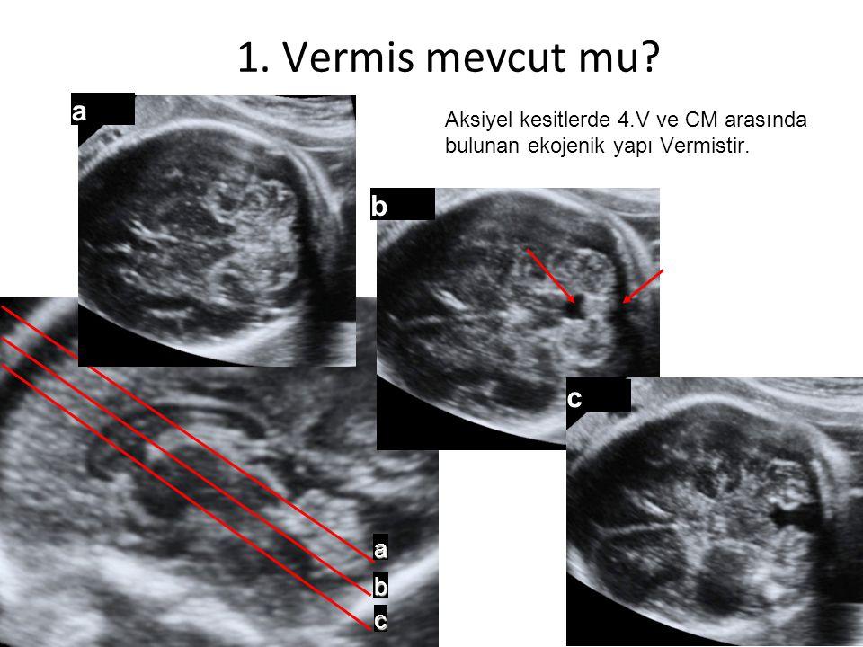 a b c a b c Aksiyel kesitlerde 4.V ve CM arasında bulunan ekojenik yapı Vermistir. 1. Vermis mevcut mu?