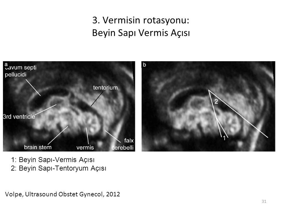3. Vermisin rotasyonu: Beyin Sapı Vermis Açısı 31 1: Beyin Sapı-Vermis Açısı 2: Beyin Sapı-Tentoryum Açısı Volpe, Ultrasound Obstet Gynecol, 2012