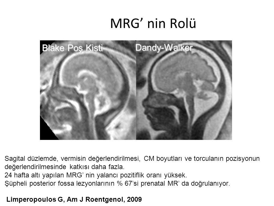 MRG' nin Rolü Limperopoulos G, Am J Roentgenol, 2009 Muscoli del collo Blake Poş Kisti Dandy-Walker Sagital düzlemde, vermisin değerlendirilmesi, CM b