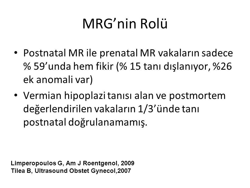 MRG'nin Rolü Postnatal MR ile prenatal MR vakaların sadece % 59'unda hem fikir (% 15 tanı dışlanıyor, %26 ek anomali var) Vermian hipoplazi tanısı ala