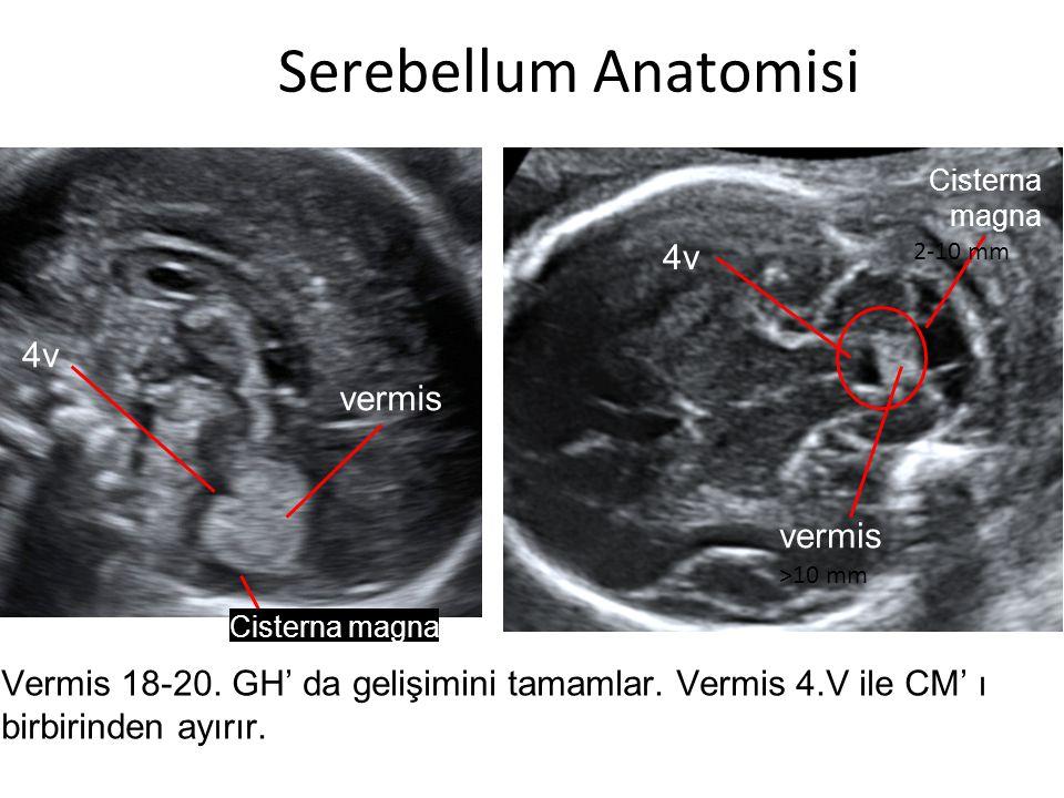 Serebellum Anatomisi 4v vermis Cisterna magna Vermis 18-20. GH' da gelişimini tamamlar. Vermis 4.V ile CM' ı birbirinden ayırır. >10 mm 2-10 mm