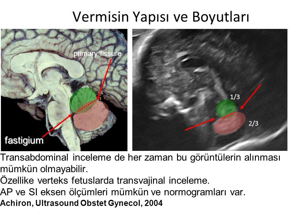 MRG'nin Rolü Postnatal MR ile prenatal MR vakaların sadece % 59'unda hem fikir (% 15 tanı dışlanıyor, %26 ek anomali var) Vermian hipoplazi tanısı alan ve postmortem değerlendirilen vakaların 1/3'ünde tanı postnatal doğrulanamamış.