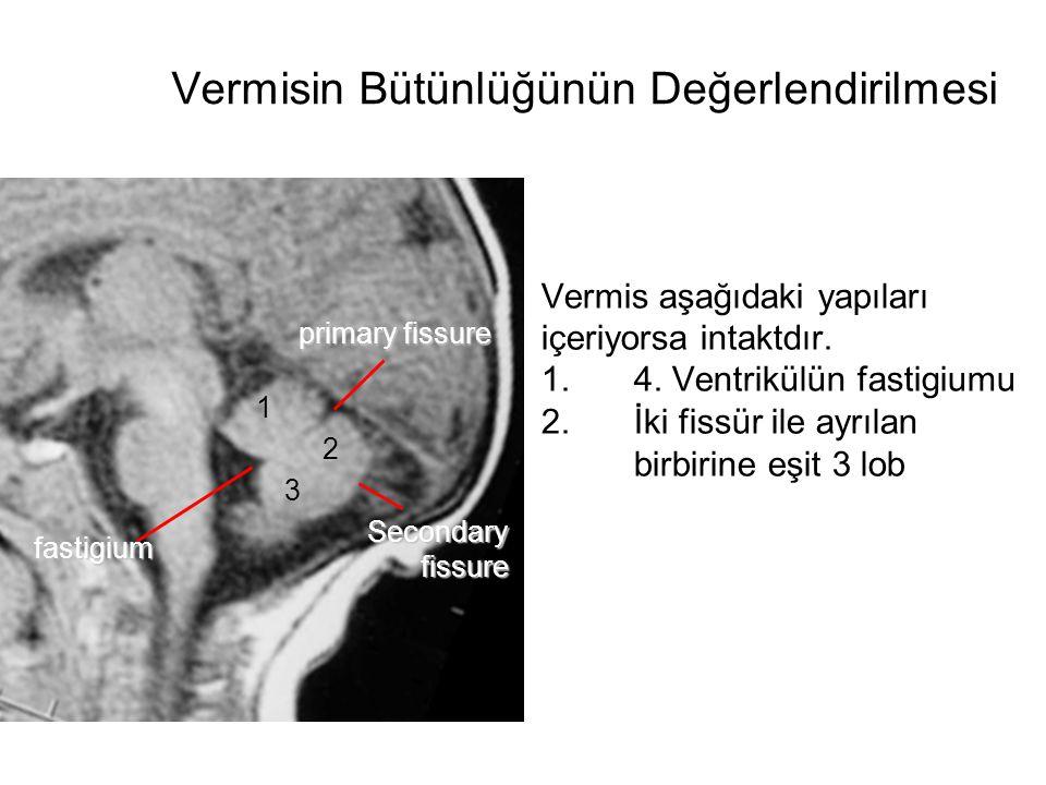 4v hemisphere vermis tentorium 4v vermis fissures 3 3 Boyutlu değerlendirme, farklı düzlemlerde incelemenin bir seferde alınan veri setlerinde yapılmasını sağladığı gibi konvansiyonel teknikte kolay kolay elde edilemeyecek düzlemlerde değerlendirme yapılmasını sağlayacaktır.