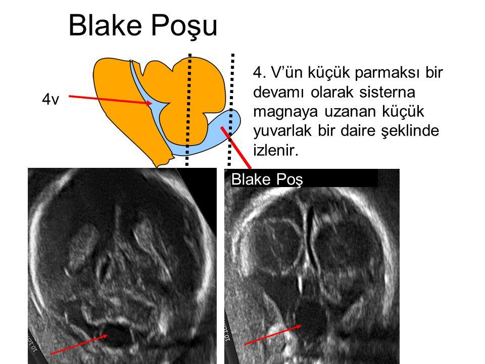 cervelletto Blake Poşu 4v Blake Poş 4. V'ün küçük parmaksı bir devamı olarak sisterna magnaya uzanan küçük yuvarlak bir daire şeklinde izlenir.