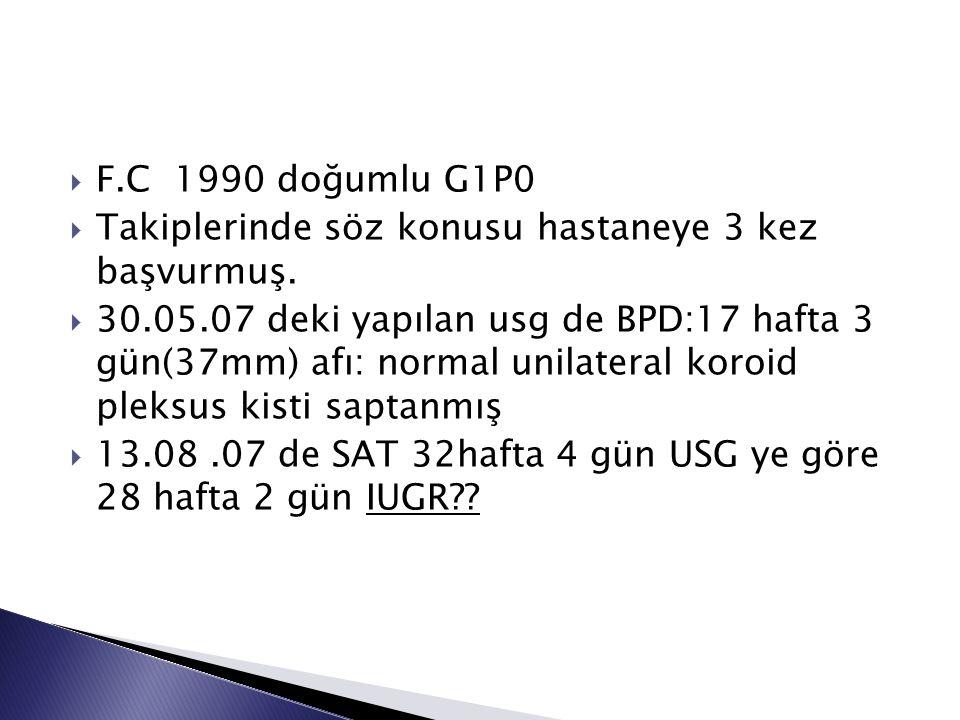  F.C 1990 doğumlu G1P0  Takiplerinde söz konusu hastaneye 3 kez başvurmuş.  30.05.07 deki yapılan usg de BPD:17 hafta 3 gün(37mm) afı: normal unila
