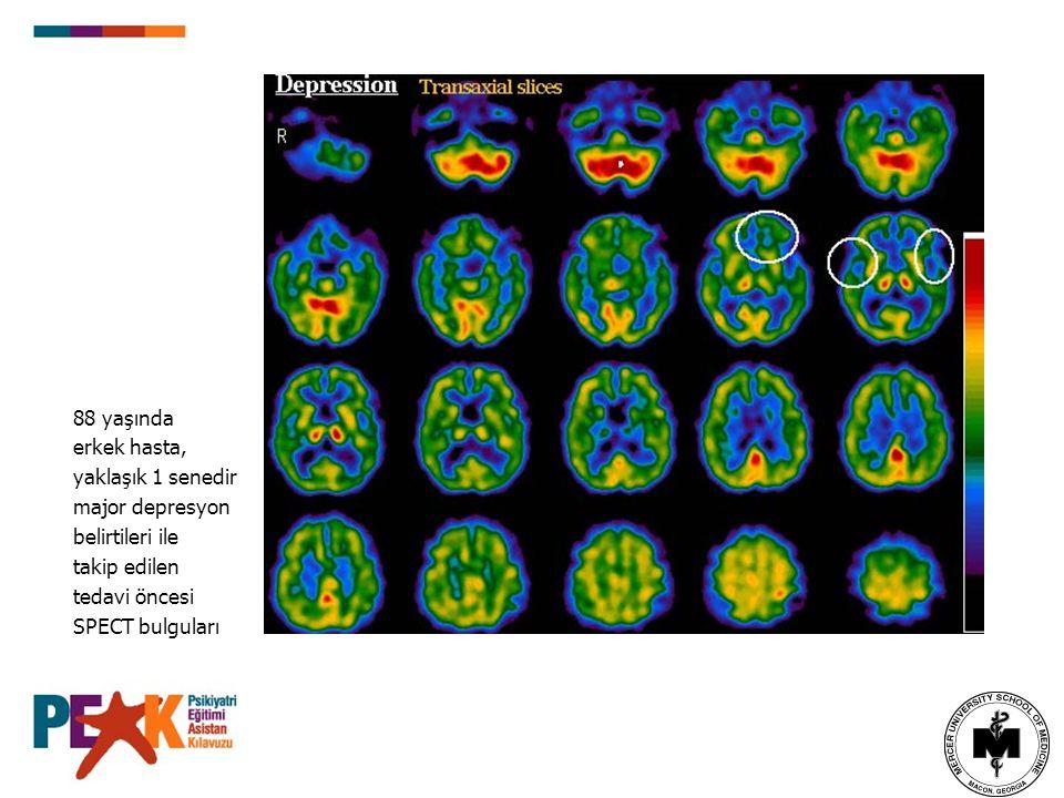 Bipolar Affektif Bozukluk Mani-depresyon kaymaları ile ilişkili olabileceği iddia edilmektedir.
