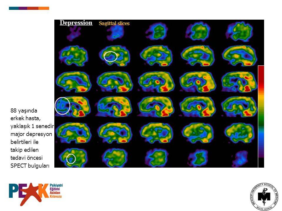 88 yaşında erkek hasta, yaklaşık 1 senedir major depresyon belirtileri ile takip edilen tedavi öncesi SPECT bulguları