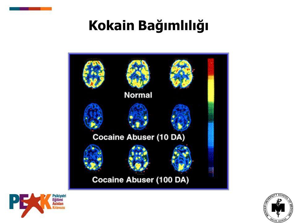 Kokain Bağımlılığı