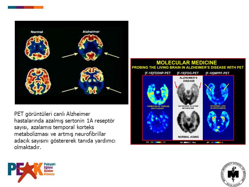 PET görüntüleri canlı Alzheimer hastalarında azalmış sertonin 1A reseptör sayısı, azalamıs temporal korteks metabolizması ve artmış neurofibrillar ada