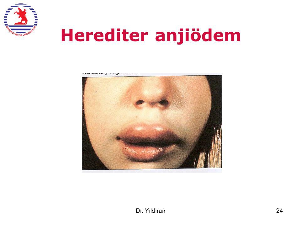 Herediter anjiödem Dr. Yıldıran24