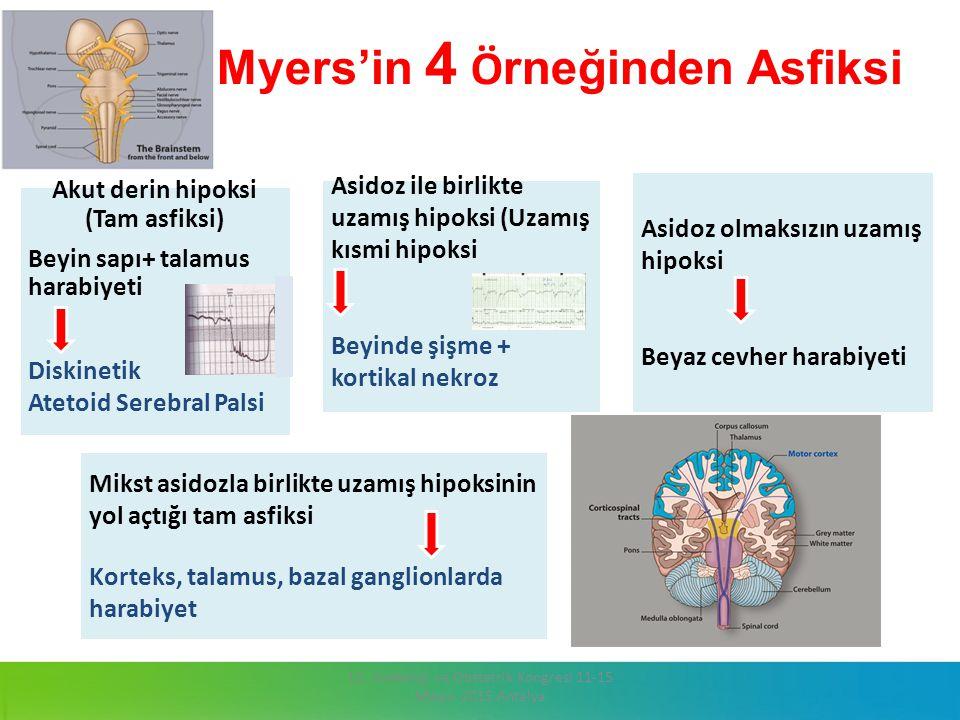 Myers'in 4 Ö rneğinden Asfiksi 13. Jinekoloji ve Obstetrik Kongresi 11-15 Mayıs 2015 Antalya Mikst asidozla birlikte uzamış hipoksinin yol açtığı tam