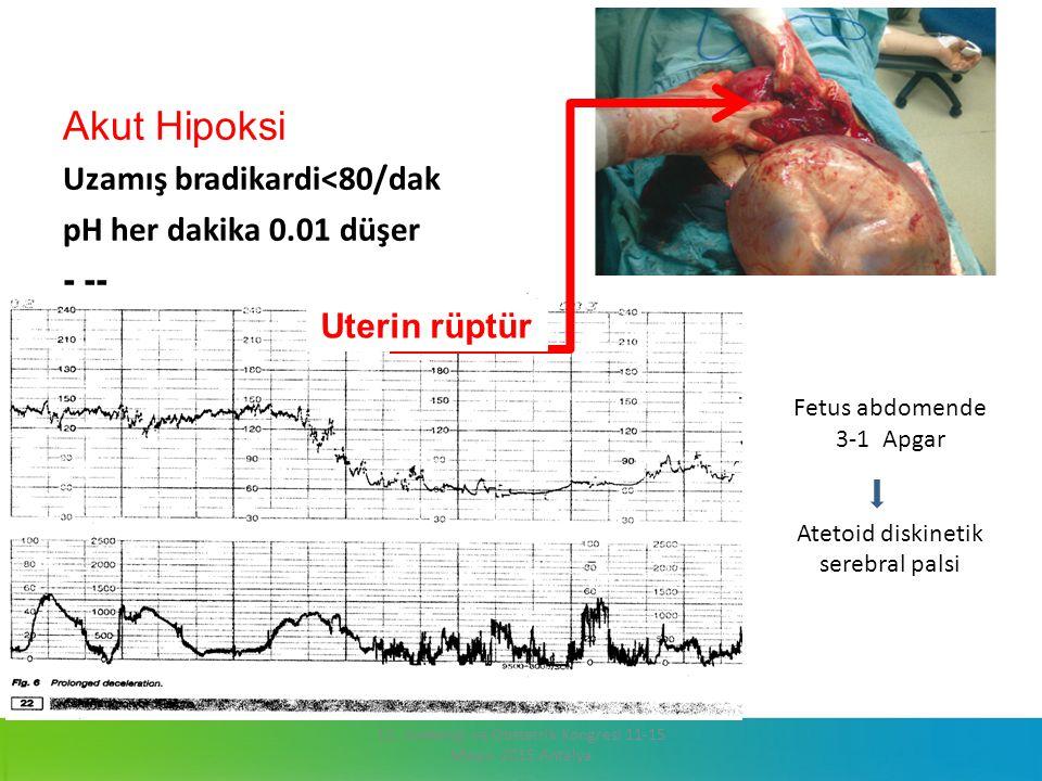 Akut Hipoksi Uzamış bradikardi<80/dak pH her dakika 0.01 düşer - -- 13. Jinekoloji ve Obstetrik Kongresi 11-15 Mayıs 2015 Antalya Uterin rüptür Fetus