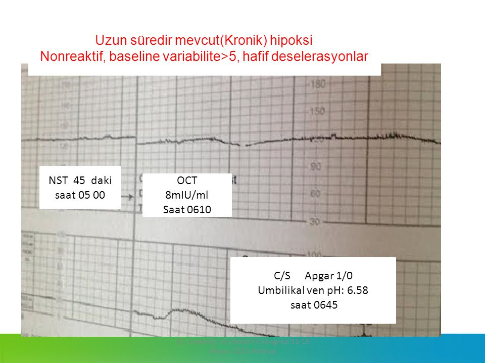 NST 45 daki saat 05 00 OCT 8mIU/ml Saat 0610 C/S Apgar 1/0 Umbilikal ven pH: 6.58 saat 0645 Uzun süredir mevcut(Kronik) hipoksi Nonreaktif, baseline v