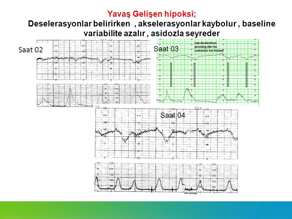 Yavaş Gelişen hipoksi; Deselerasyonlar belirirken, akselerasyonlar kaybolur, baseline variabilite azalır, asidozla seyreder Saat 02 = Saat 03 Saat 04